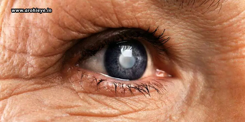 How-To-Prevent-The-Growth-Of-Cataracts1.jpg