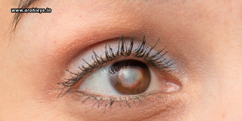 Why-Are-Cataracts-Being-Observed-In-Young-Age-Groups.jpg