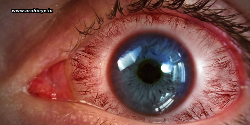The-Most-Common-Retinal-Diseases.jpg