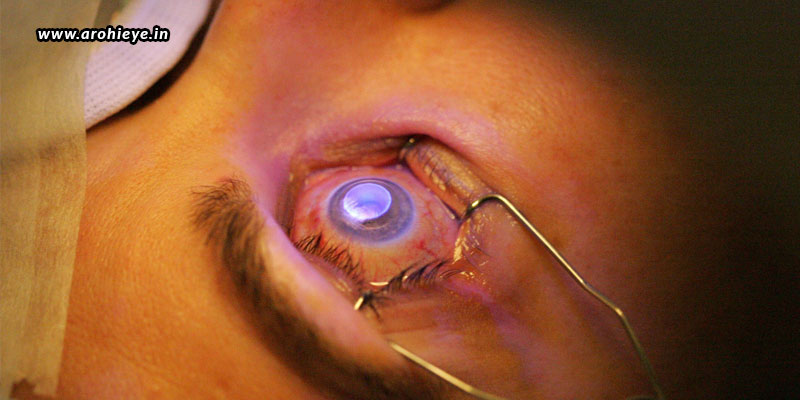 What-Happens-If-We-Move-Our-Eyes-During-LASIK.jpg