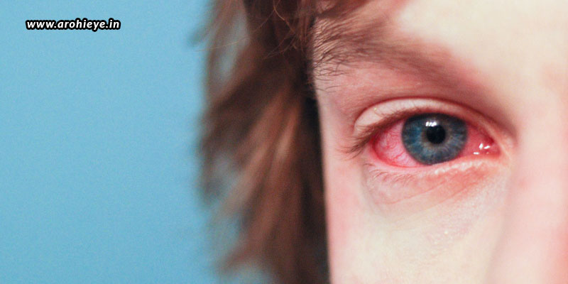 How-Can-You-Protect-Your-Eyes-From-Allergies.jpg