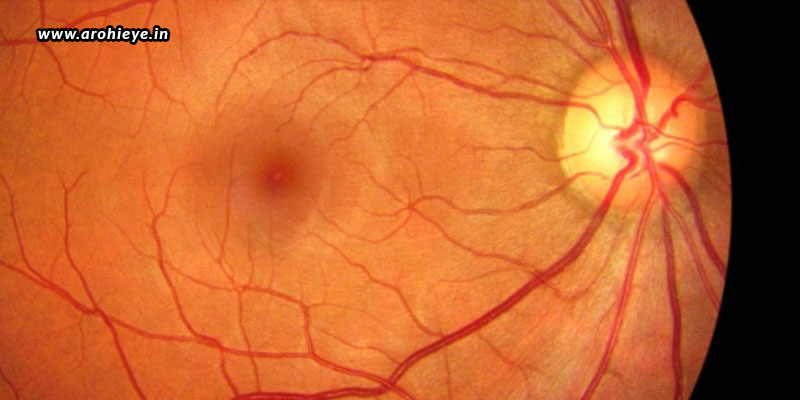 How-Can-Retinal-Tears-And-Detachment-Be-Treated.jpg