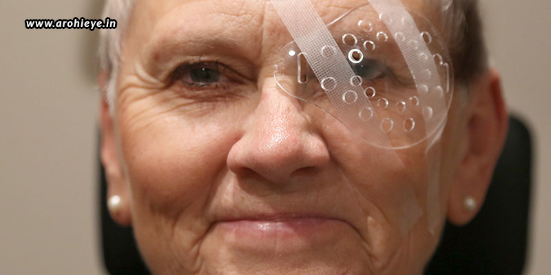 What-All-To-Take-Care-Of-After-Cataract-Surgery.jpg