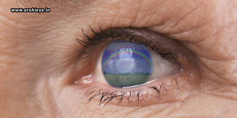 Do-You-Want-A-Successful-Cataract-Operation.jpg