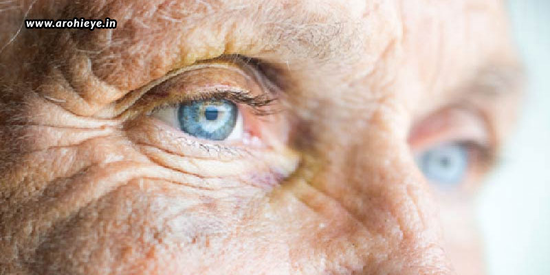 Ageing-And-Eye-Problems-How-To-Deal-With-It.jpg