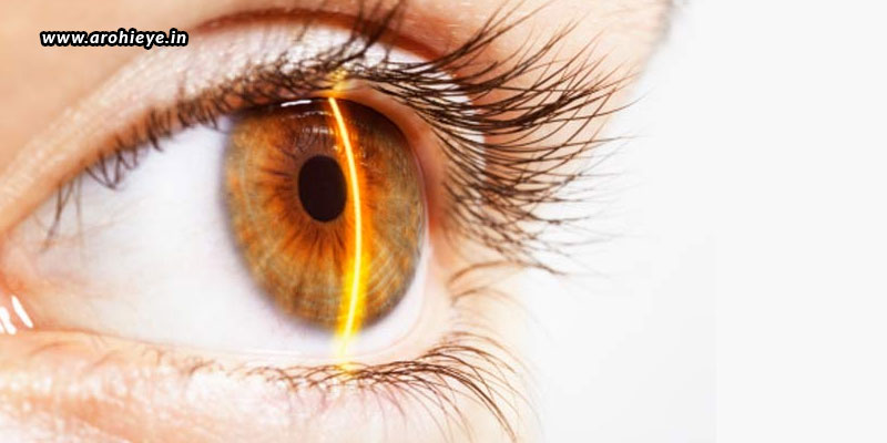 Lasik-Surgery-The-Pros-And-Cons.jpg