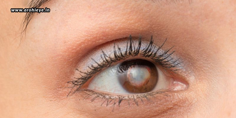 Cataract-Surgery-The-Benefits-And-Risks.jpg