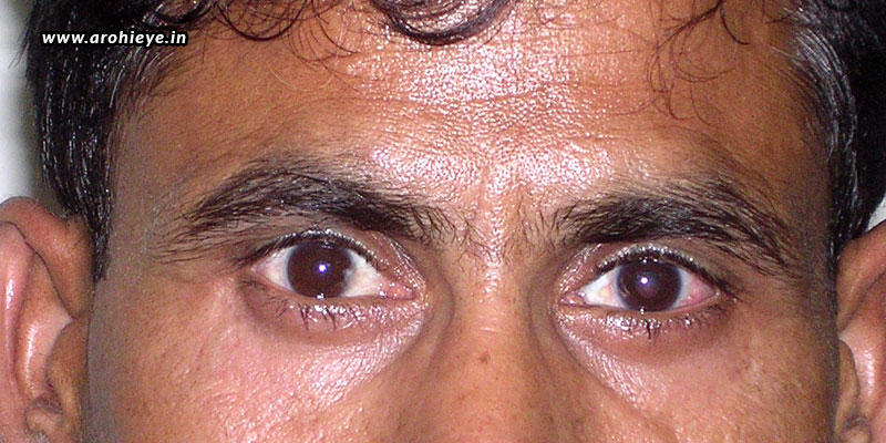 Cost-Of-Squint-Eye-Surgery-In-India.jpg