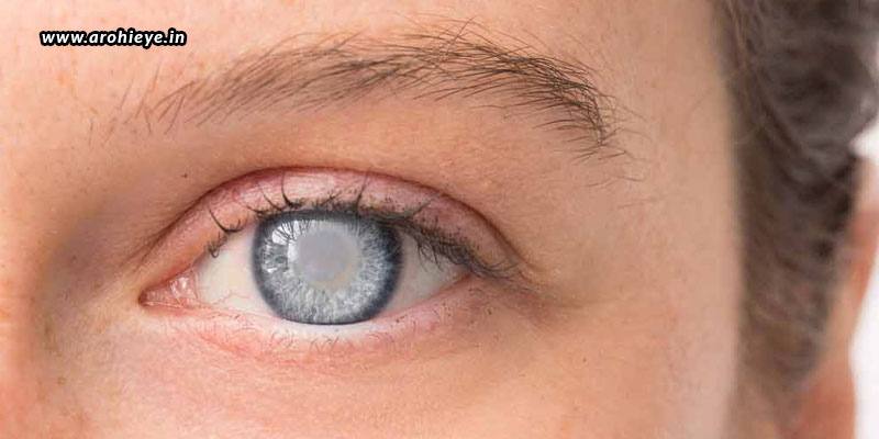 Cataract-Surgery-After-Lasik-Is-It-Safe.jpg